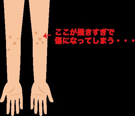 アトピー性皮膚炎のかゆみ