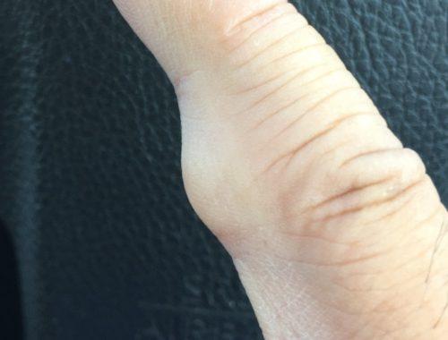 指のしこり