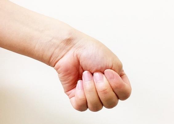 腱鞘炎のチェック方法